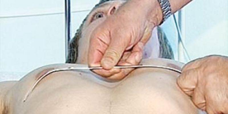 Упражнения при воронкообразной груди
