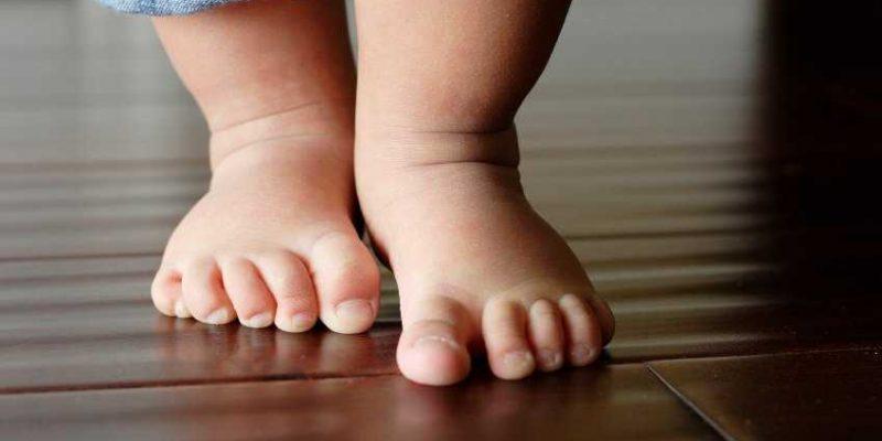 Photo of Упражнения при врожденной косолапости у детей на начальной степени