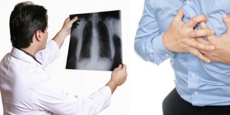 ЛФК при бронхоэктатической болезни легких